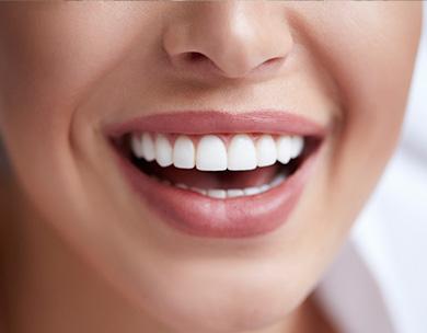 orlando cosmetic dentistry